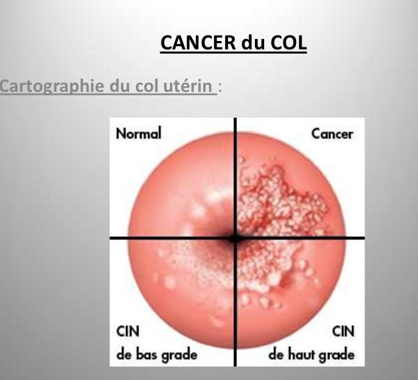 Le diagnostic du cancer du col de l'utérus