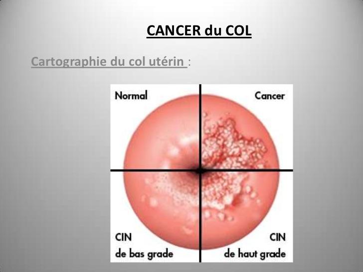 Le diagnostic du cancer du col de l'utérus
