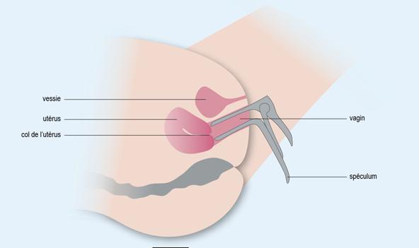 Frottis vaginal Spéculum vagin