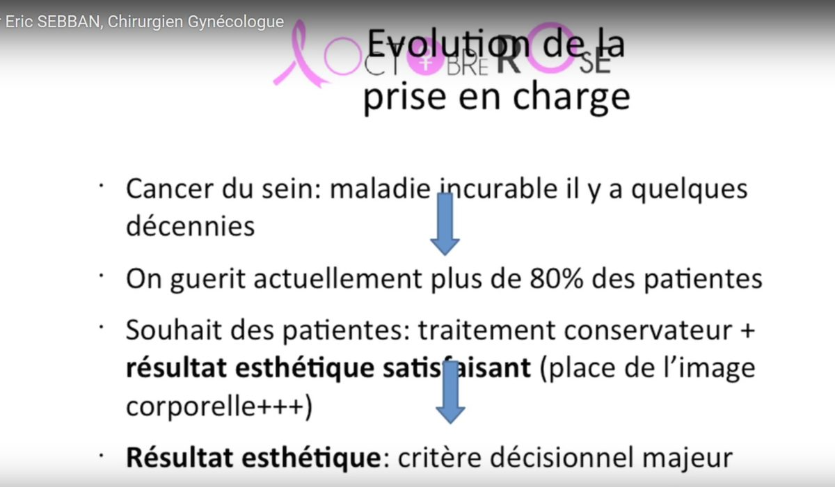 Transcription de la vidéo du Dr Sebban sur les avancées en chirurgie de cancer du sein