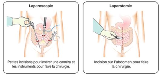 Laparoscopie et laparotomie