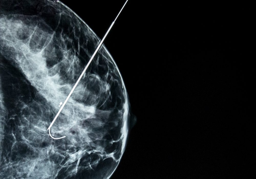 La biopsie mammaire – Modalité & intérêt dans le diagnostic du cancer du sein