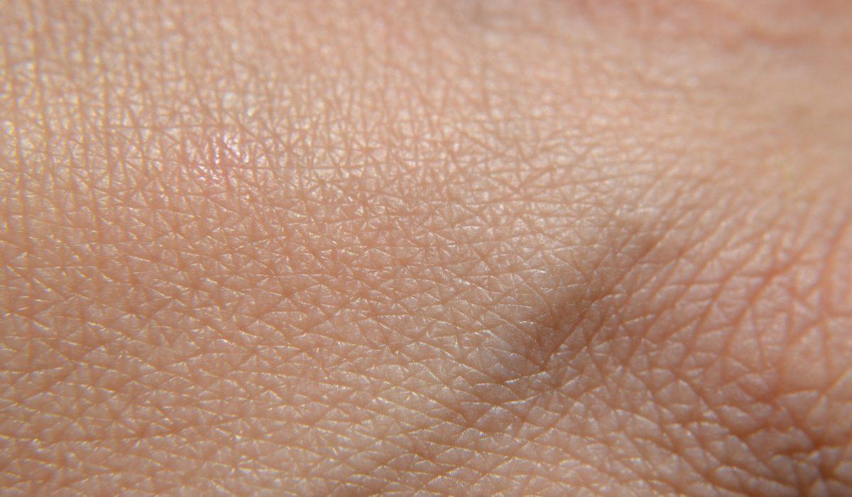 Traitements du cancer du sein : comment gérer les problèmes d'ongles et de peau ?