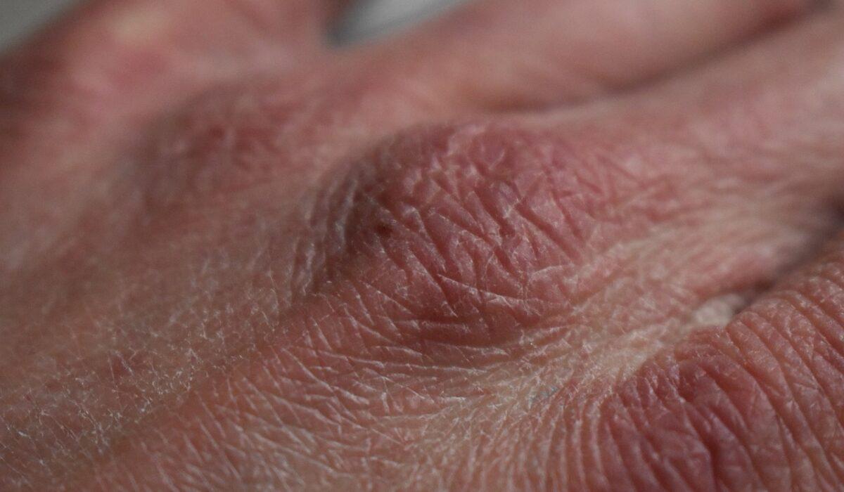 Syndrome main-pied après chimiothérapie du cancer du sein : quelles sont les solutions ?