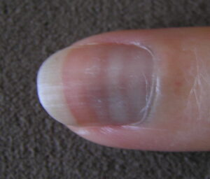 Syndrome pied main, effet sur les ongles