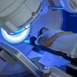 Irradiation partielle du sein dans le traitement des cancers au stade précoce