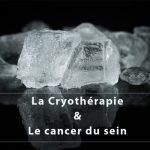 Cryothérapie et cancer du sein